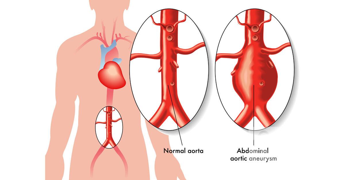 Az orvosi sorozatokban emlegetett érrendszeri betegség: az aneurizma