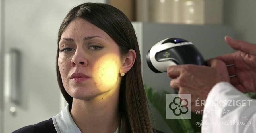 Bioptron a látáshoz