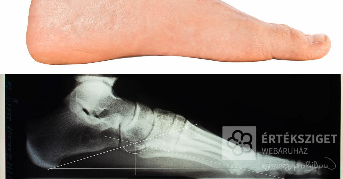 Könnyed láb érzése lúdtalp mellett: 3 módszer, amivel enyhíthetők a tünetek - Értéksziget Webáruház